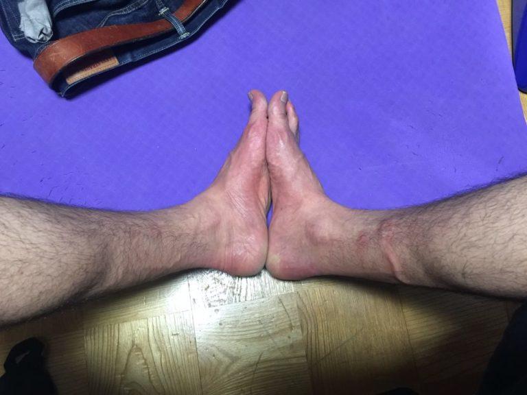 かかとが歩くと痛い-ガサガサ-足底腱膜炎-疑い