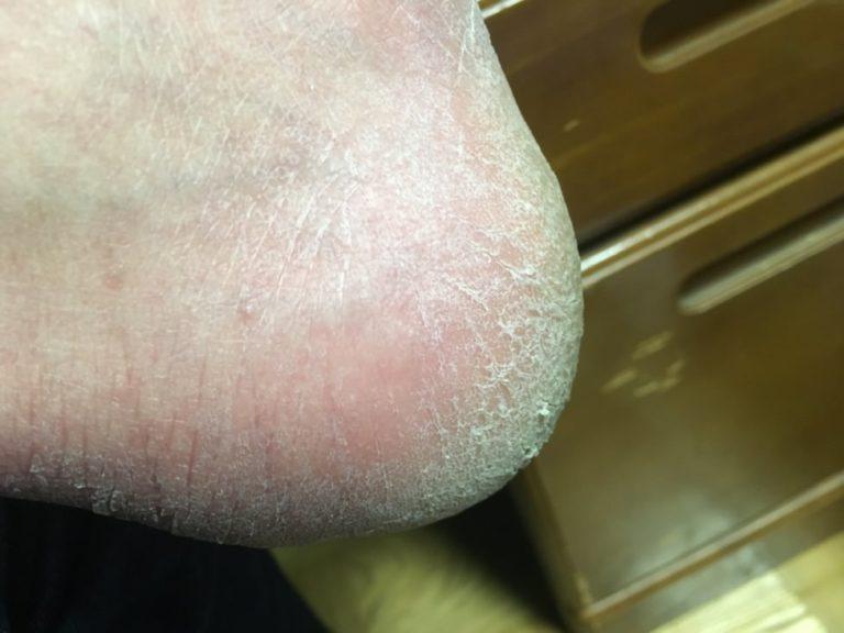 かかとが歩くと痛い-ガサガサ-角質